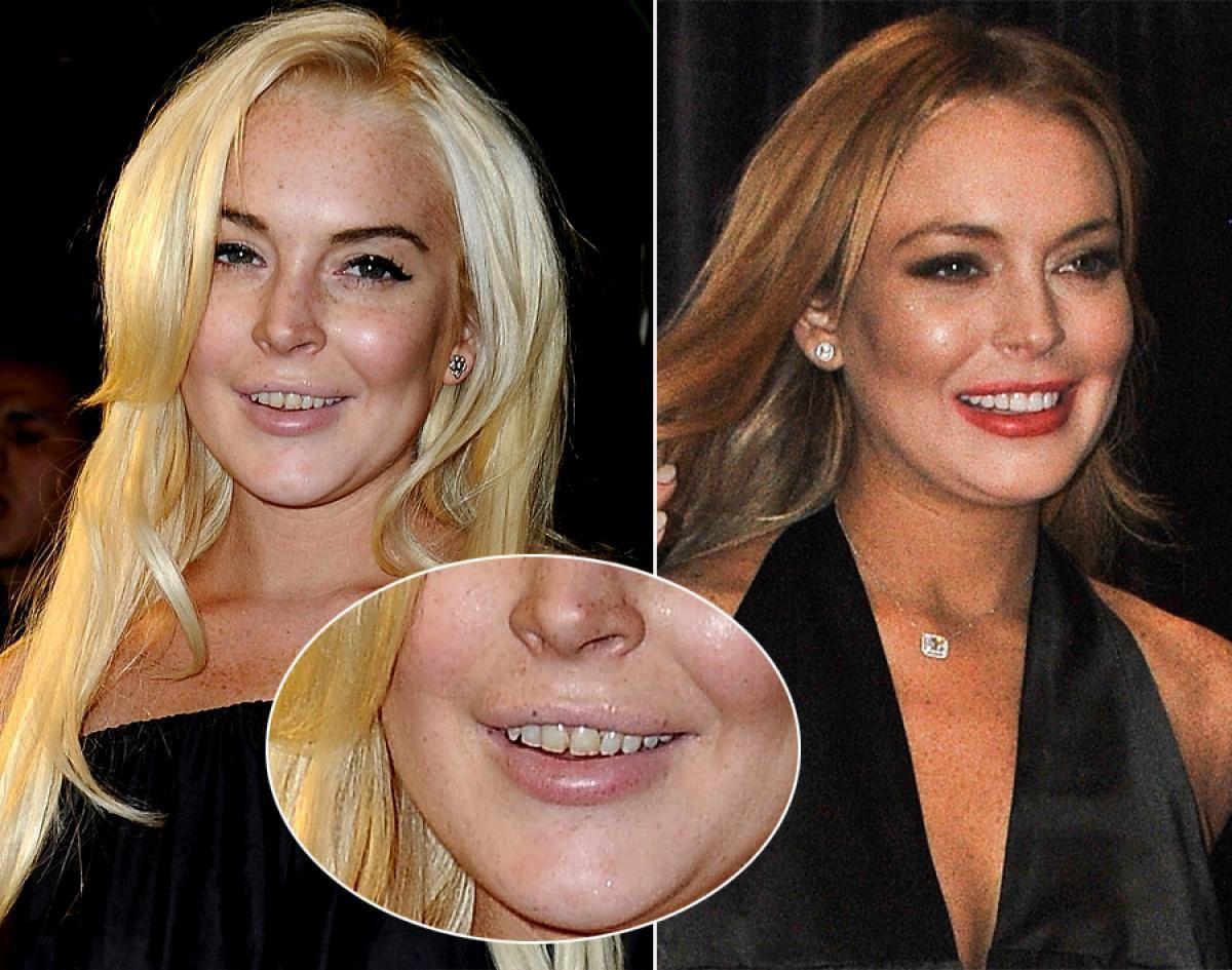 Top 20 de celebridades con mala dentadura Lindsay Lohan