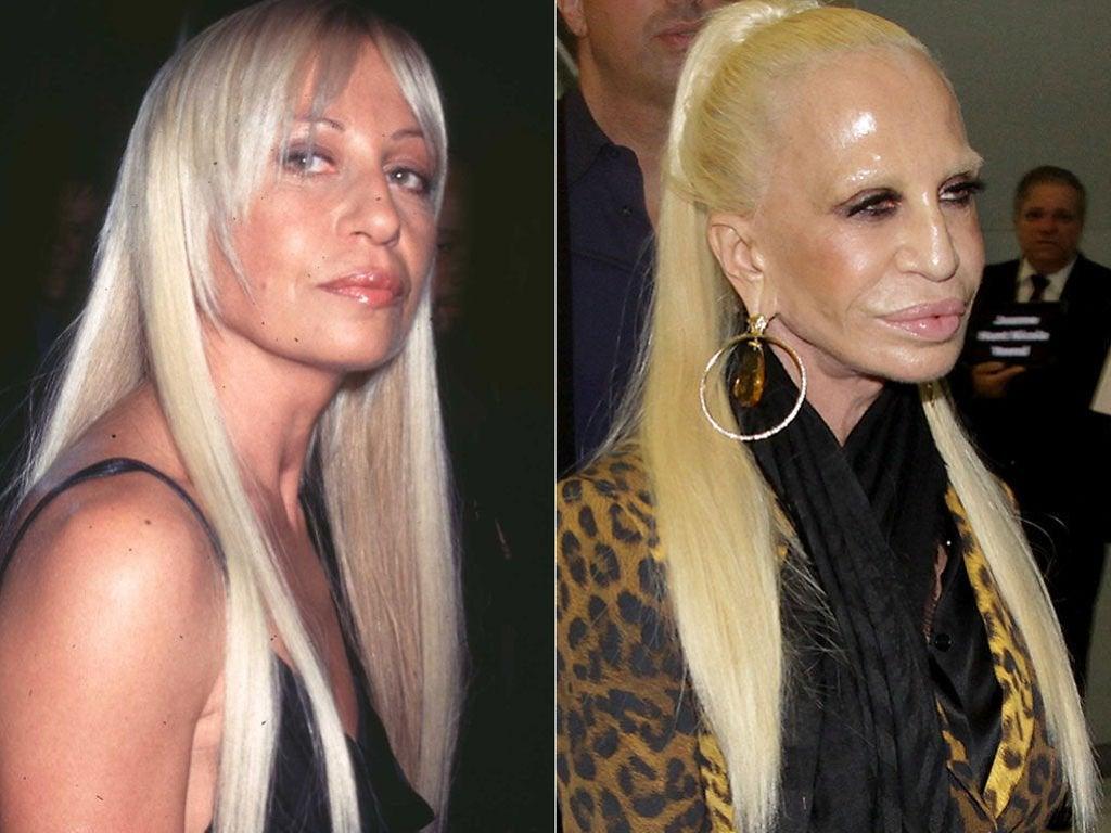 Donatella Versace Celebridades y sus cirugías plásticas