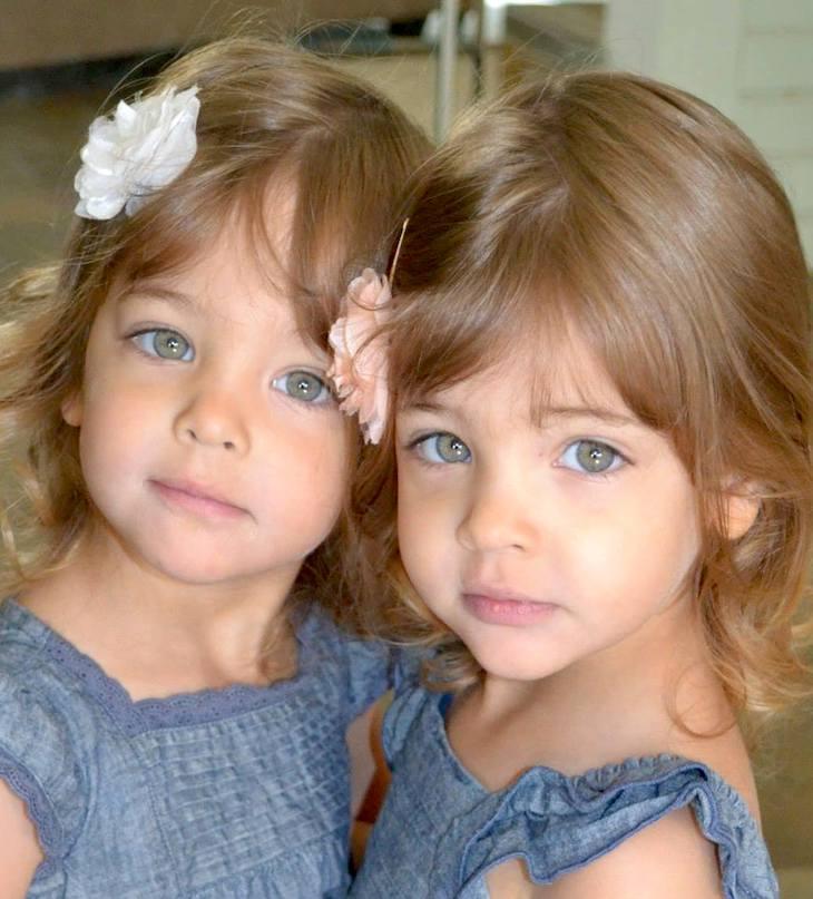 El choque inicial Las gemelas que se hicieron famosas cuando eran niñas