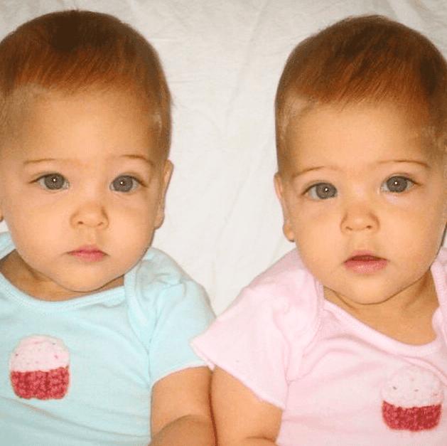 Entró al mundo por sorpresa Las gemelas que se hicieron famosas cuando eran niñas